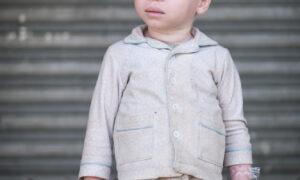 Tanzaniaans kind met albinisme